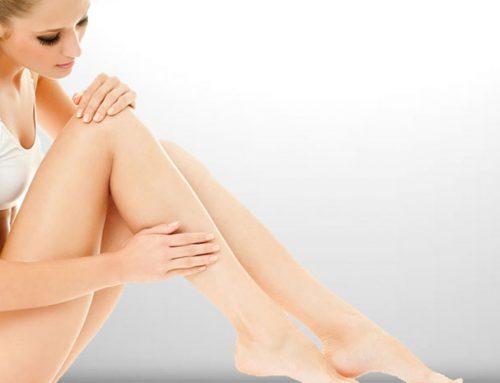 Beinästhetik, Korrektur von X-Beinen und anderen Fehlstellungen der Beine