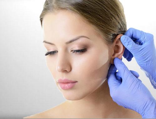 Korrektur von Abstehenden Ohren