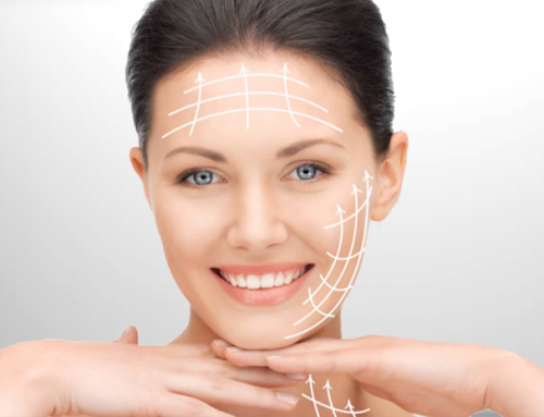 Facelift Surgeries